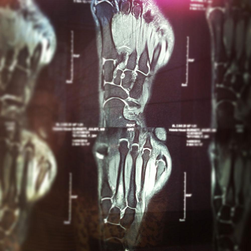 MRI scan of Juliet's foot.© Juliet Burnett. (Click image for larger version)